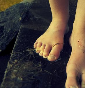 Will I Have Grandma S Ugly Feet